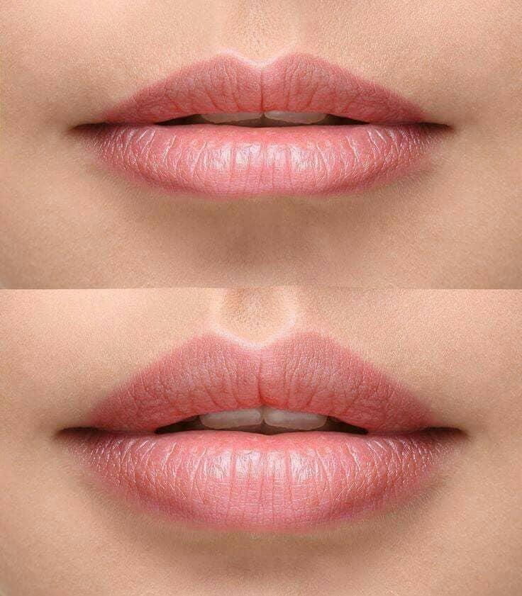 филъри за устни